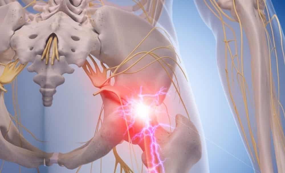 Sciatica, Sciatic Pain, Walkley Chiropractic Group, Bunbury Chiropractor, Chiropractor Bunbury