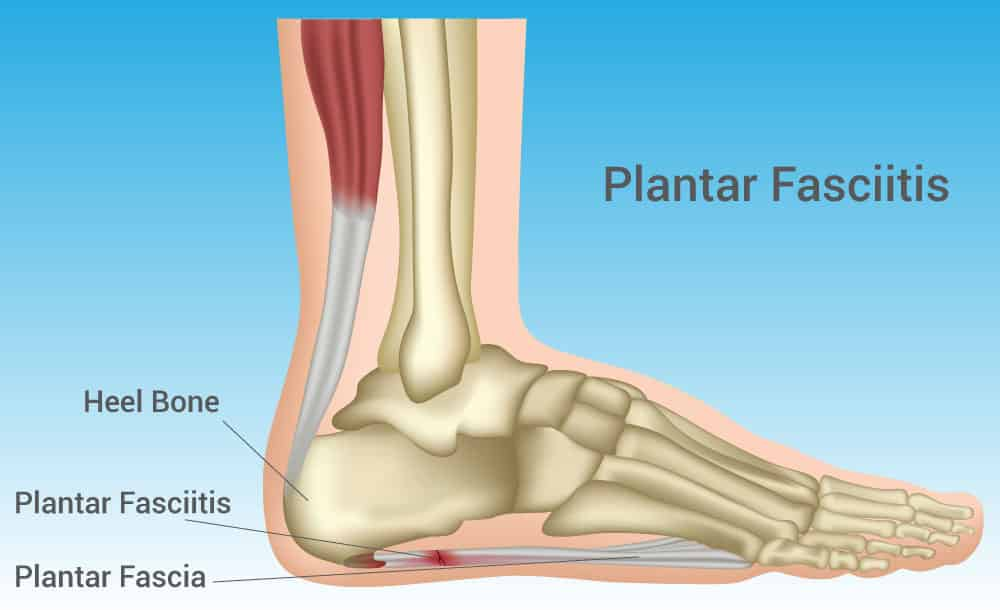 Plantar Fasciitis Walkley Chiropractic Group