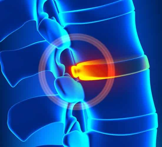 Bulging Disc Degeneration - Spine problem, Disc Injuries, Walkley Chiropractic Group, Bunbury Chiropractor, Chiropractor Bunbury