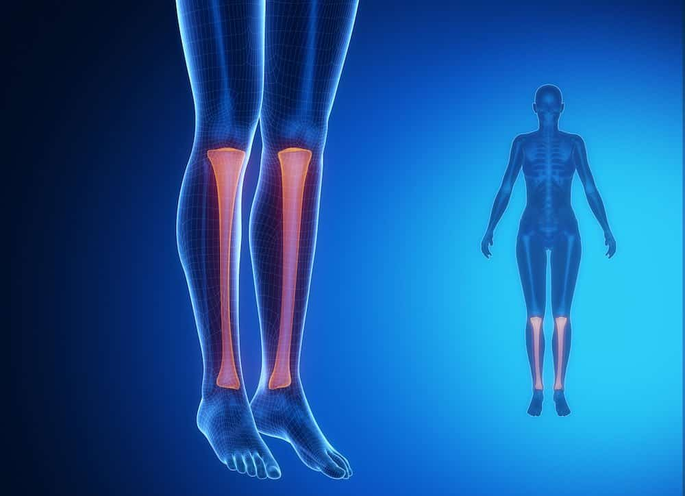 Shin Splints, Walkley Chiropractic Group, Bunbury Chiropractor, Chiropractor Bunbury