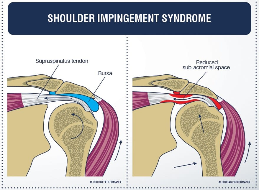 This Occurs When The Rotator Cuff Tendons Are Trapped Or Compressed During Shoulder Movements Repeatedly It Can Lead To Inflammation Of