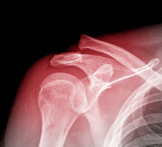 X-ray of human shoulder, Shoulder Injuries, Walkley Chiropractic Clinic, Bunbury, Western Australia