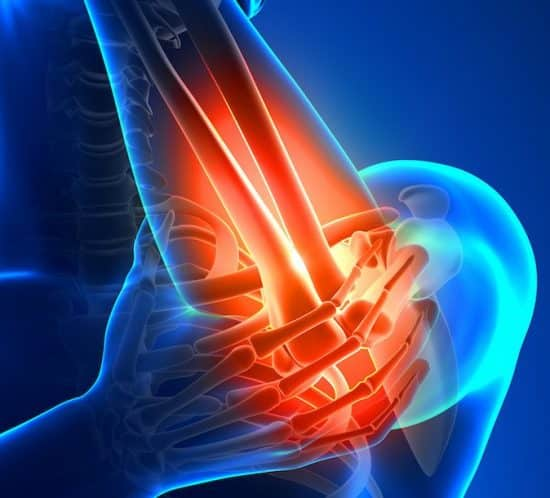 Elbow Pain, Tennis Elbow, Walkley Chiropractic Group, Bunbury Chiropractor, Chiropractor Bunbury